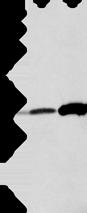 Anti-ANXA4 antibody