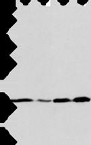 Anti-ARF6 antibody