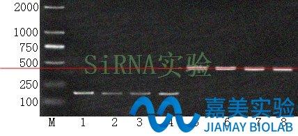逆转录PCR(RT-PCR)实验案例介绍