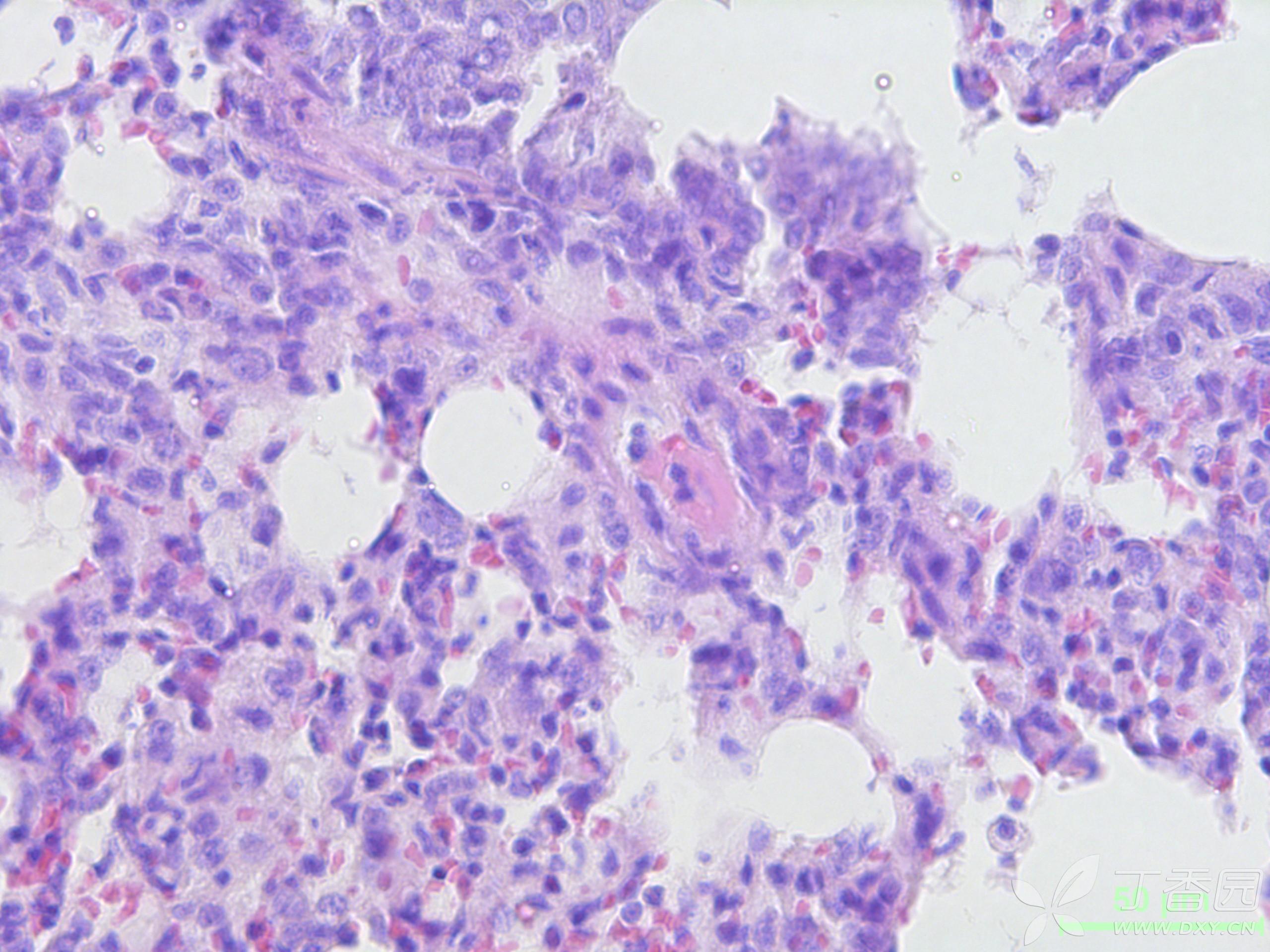 正常胃上皮细胞图片