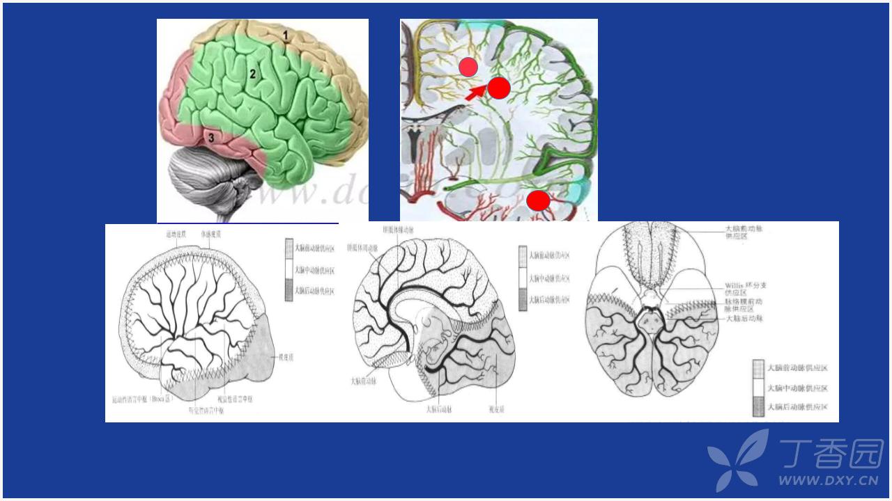 脑梗死临床表现图片