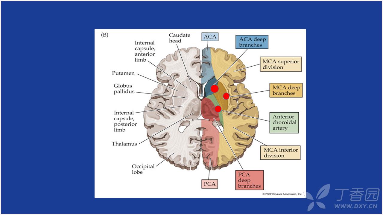 脑梗死症状图片