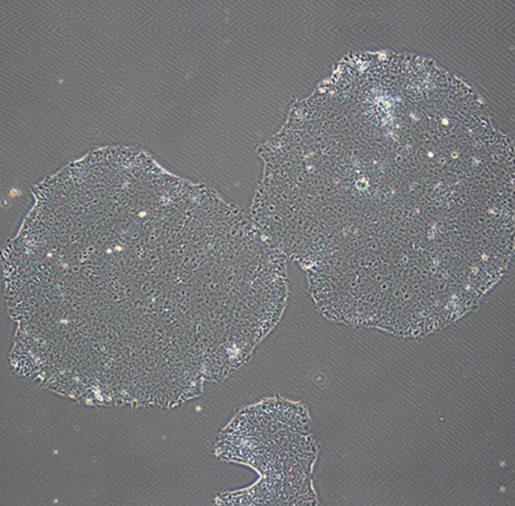 人誘導多能干細胞(hiPSC)