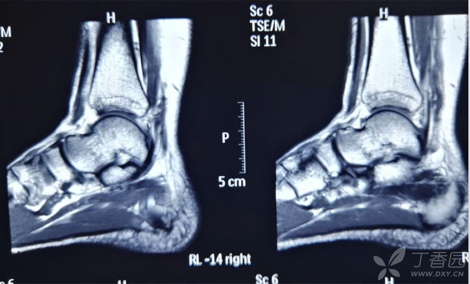 [跟腱断裂]跟腱铆钉手术视频-1药网