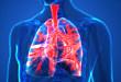 Medscape 精选  肺栓塞患者的出院后管理