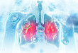 Medscape 精选 |ALK阳性非小细胞肺癌的新治疗方法