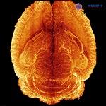 大组织样本透明化,免疫荧光标记,整体组织成像及图像分析服务