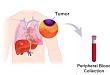 最新研究 | 转移性乳腺癌一线化疗预后监测新突破