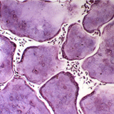 ATP酶染色