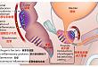 经常拉肚子的男人更容易得前列腺癌?