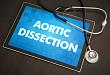 胸痛可能为「主动脉夹层」的 10 个征象