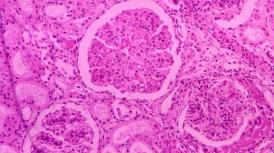 Anguina agrostis剪股颖粒线虫PCR试剂盒13-1130