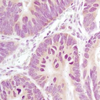 免疫组化IHC