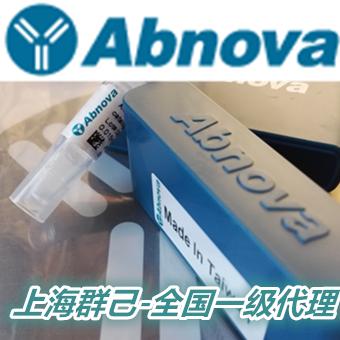 MACC1多克隆抗体 - 【MACC1 polyclonal antibody】