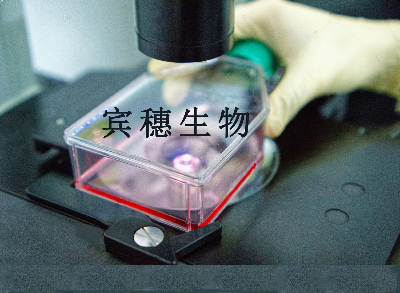 HRT-S1:人结肠癌细胞系 技术复苏