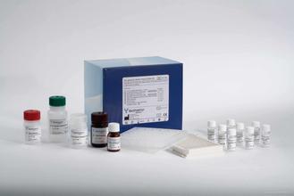 N-乙酰-β-D-葡萄糖苷酶(NAG)测试盒50管/24样品牌