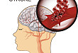 脑出血治疗方案怎么选?JAMA 综述告诉你