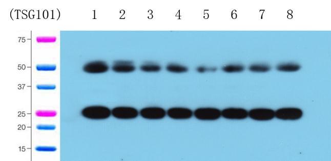 外泌体Western blot检测服务
