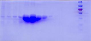 鸡传染性支气管炎N蛋白