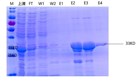猪繁殖与呼吸障碍综合征病毒N蛋白