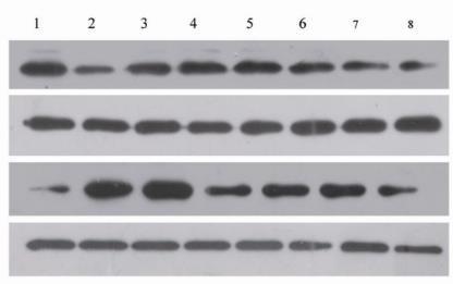 蛋白质免疫沉淀和免疫共沉淀(Immunoprecipitation, IP, and co-IP)