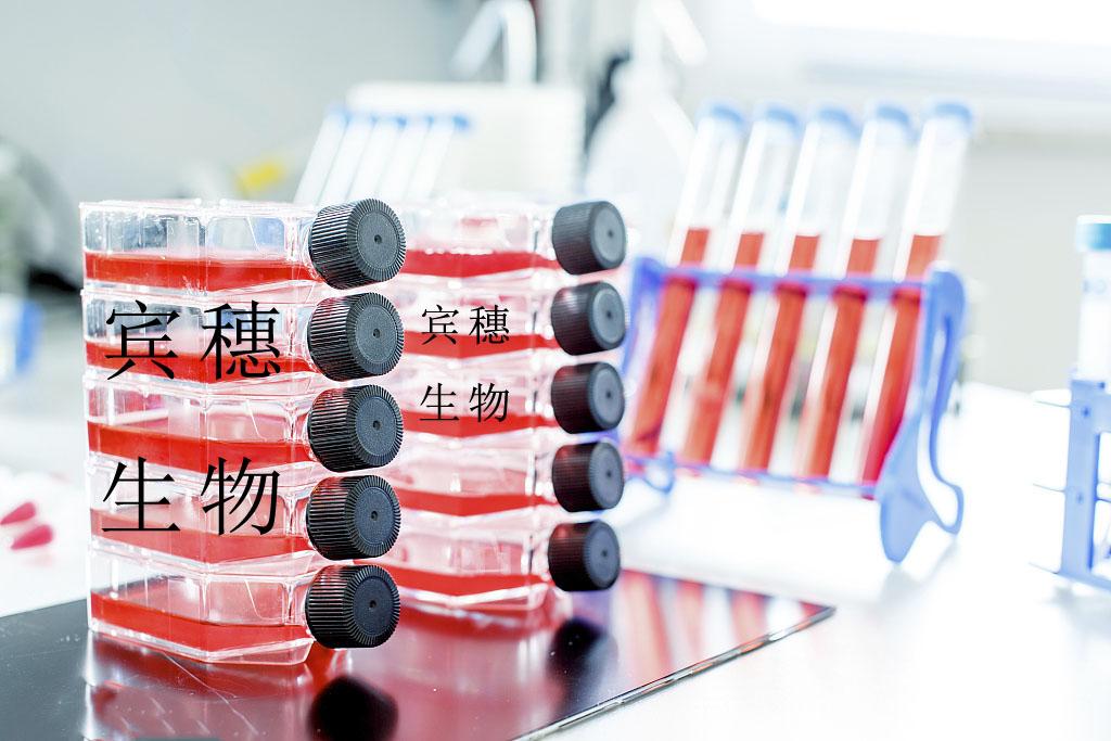 NCI-H2106细胞<人非小细胞肺癌细胞>