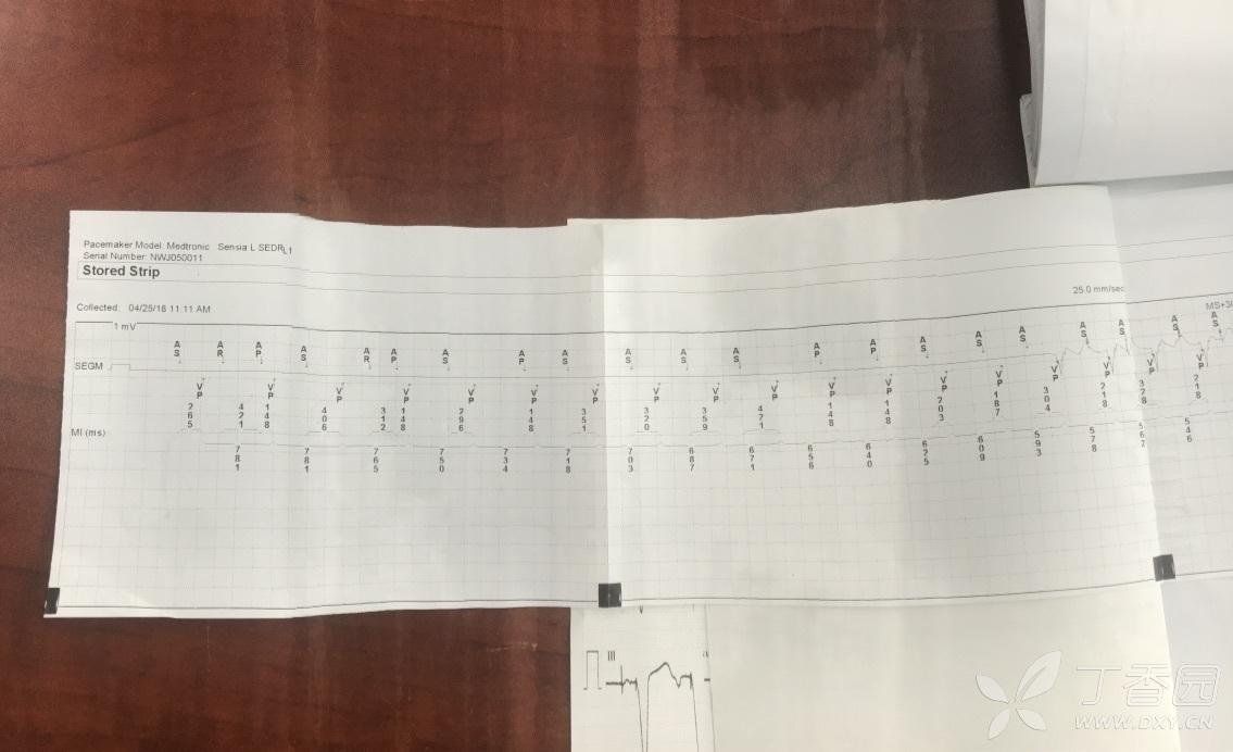 一份遗失的双径路合并起搏器后PMT的病例- 心血管专业讨论版-丁香