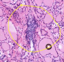 D-PathAI 甲状腺冰冻分析模块