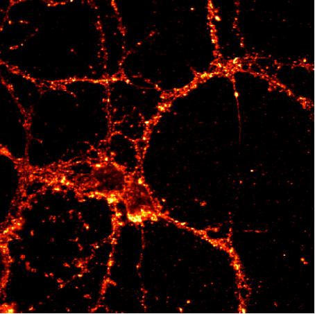 小鼠、大鼠原代神经元