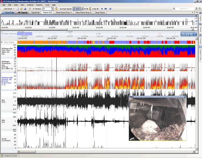 NeuroScore中枢神经系统专业分析软件