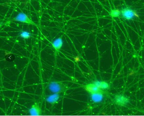 运动神经元