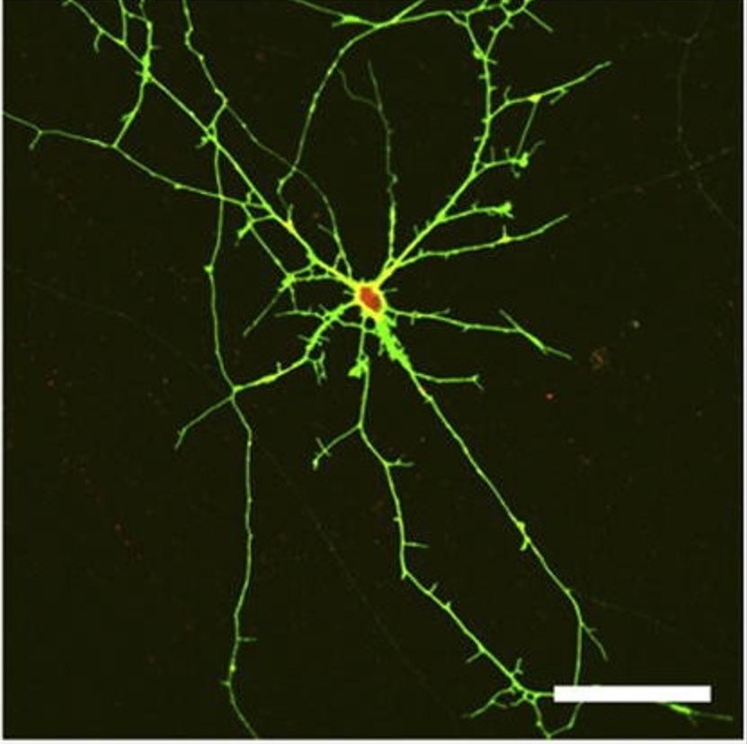 GABA神经元