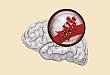 抗凝治疗脑出血怎么办?ESO 指南来支招