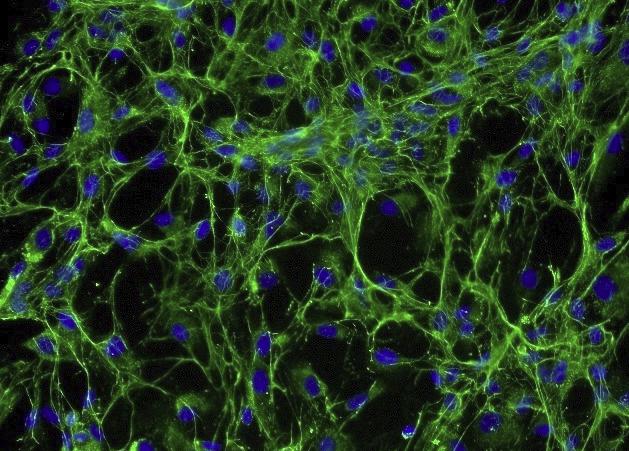 小鼠晶状体上皮细胞(原代细胞)
