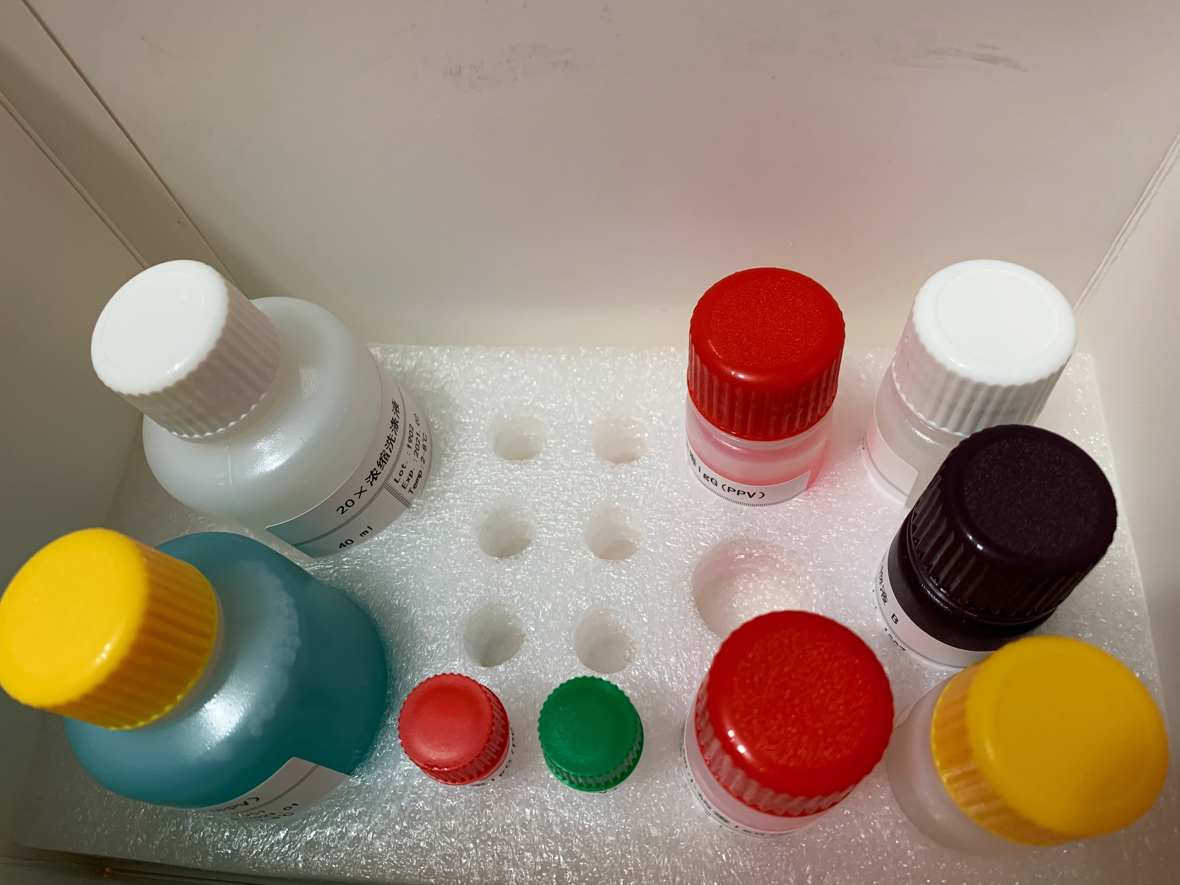 人可溶性蛋白185(sp185/HER-2)ELISA检测试剂盒