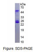 丝氨酸/苏氨酸激酶3(STK3)重组蛋白