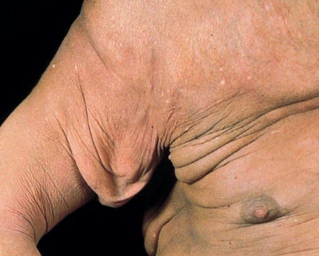 肉芽肿性皮肤松弛症.jpg