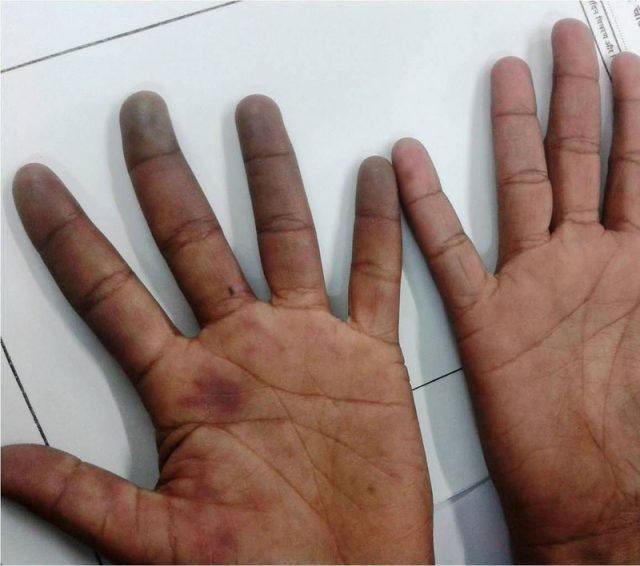 9肢端青紫症.jpg