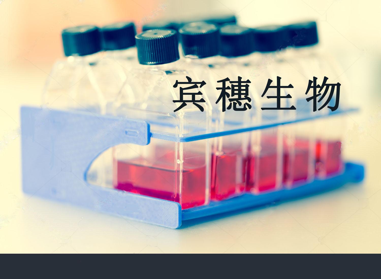SHZ-88大鼠乳腺癌细胞 国外引种