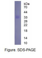 短腭肺鼻腔上皮癌关联蛋白2(SPLUNC2)真核蛋白