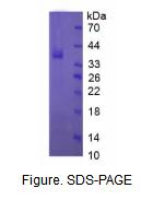 神经生长因子(NGF)真核蛋白