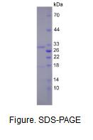 基质金属蛋白酶7(MMP7)真核蛋白
