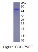 组织蛋白酶D(CTSD)真核蛋白