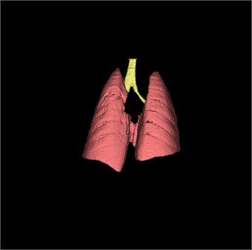 小动物活体肺 microCT 显微CT 检测分析