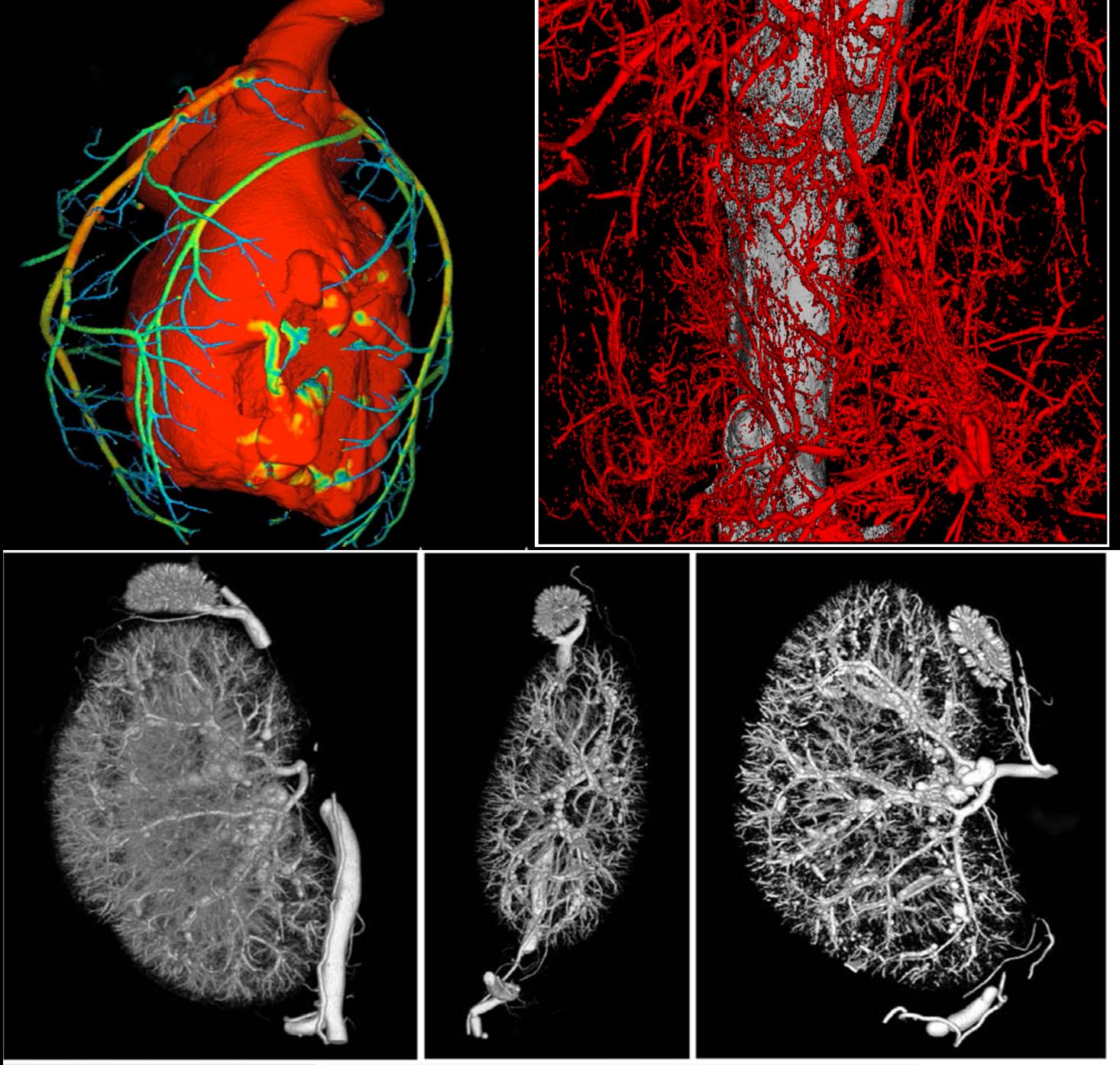 血管 Micro-CT检测 造影剂