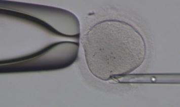 单细胞测序