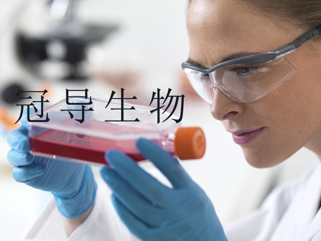 LIPF155C 人胆管癌细胞