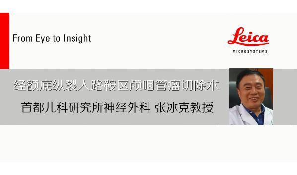 北京儿研所张冰克:小儿巨大颅咽管瘤 如何做到术后恢复视力,兼谈三大入路之辨