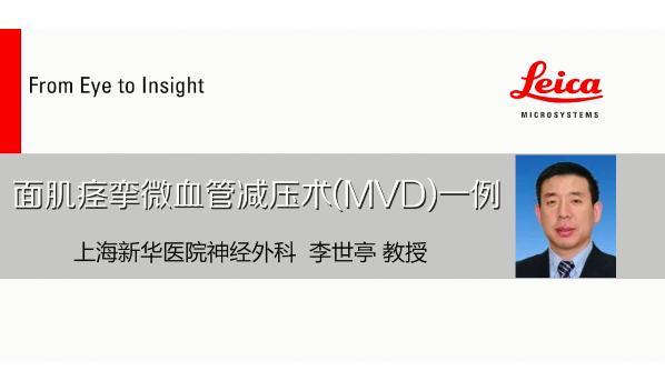 上海新华医院李世亭:安全有效的面肌痉挛微血管减压术要做到哪四点