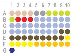乳腺癌60点组织芯片HBre-Duc060CD-01